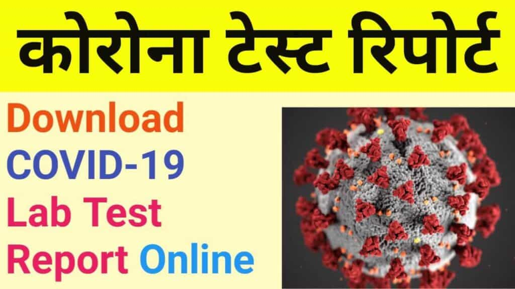 download covid 19 test report online